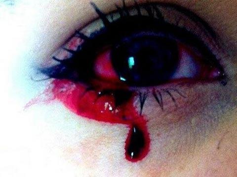 眼球出血_这位4岁小男孩眼睛莫名发肿流血,最后眼球竟「整个弹出来」!
